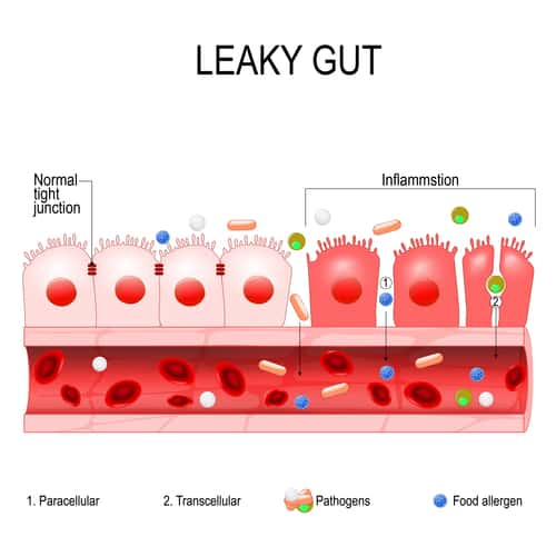 signs leaky gut healing is needed